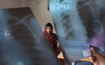 Poverty reduction as effective as medicine in preventing TB
